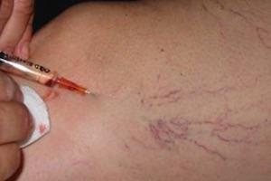 Immagine dermoestetica corpo Dott.ssa Beatrice Pietricola